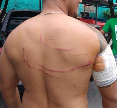 Jovem sobrevive a ataque de jacaré no Rio Araguaia