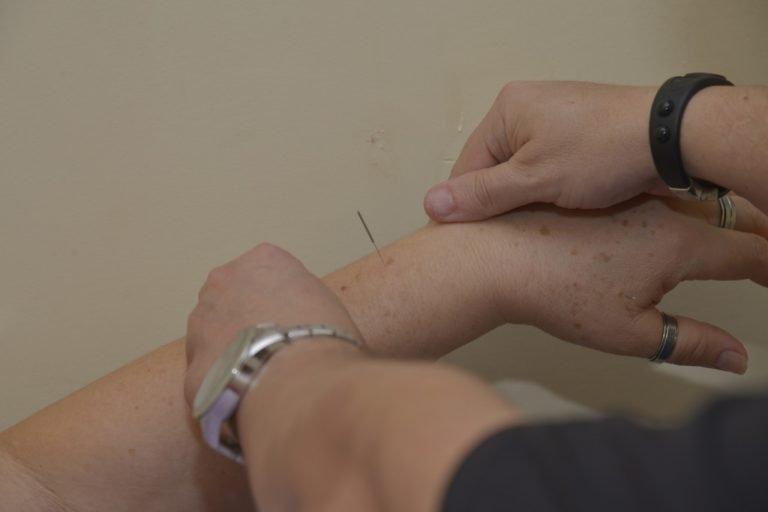 Aparecida oferece tratamento de acupuntura grátis aos pacientes do SUS